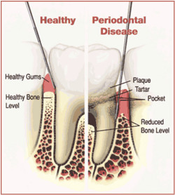 Periodontal-disease-illustration